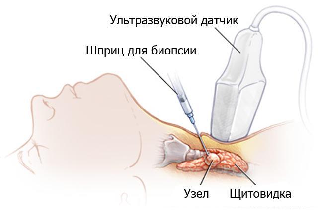 Что делать перед узи щитовидной железы